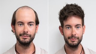 Hair Loss Solutions I Transformation With Hairsystem I Hairsystems Heydecke