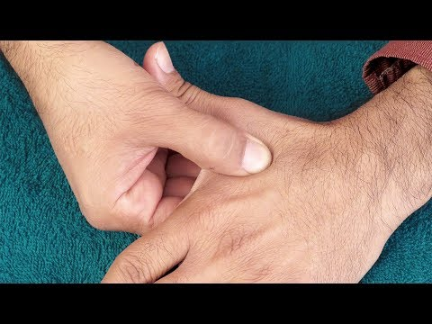 Dispozitiv pentru tratament de prostata