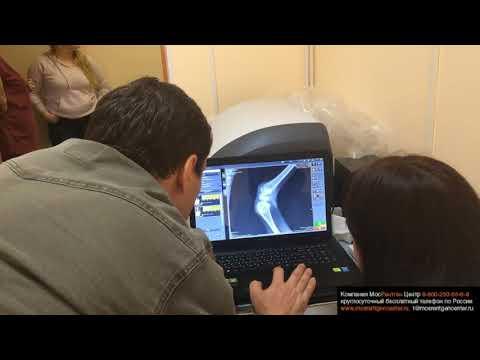 Рентген колена барашка