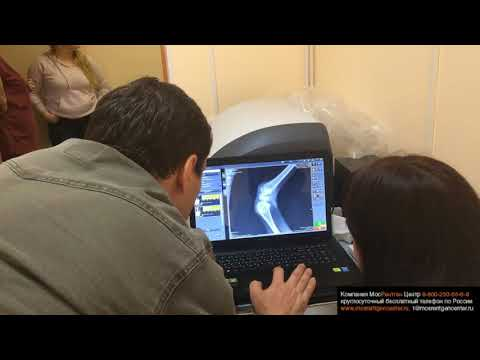 Лечение обострения шейного хондроза