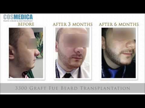 haar-transplantation-in-turkei-9