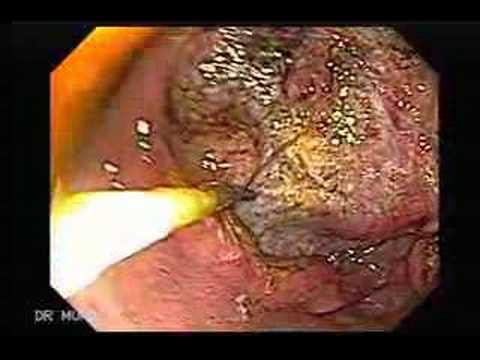 Papilloma virus nelle donne sintomi