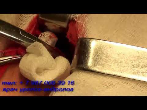 Чем обработать ножницы от гепатита