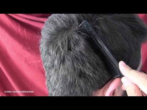 Zwrócić uwagę na wypadanie włosów