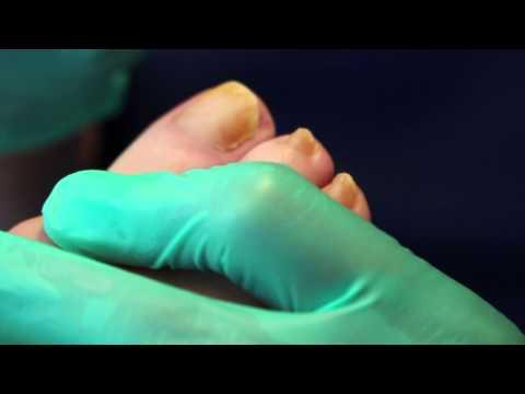 Kuko fungal infection treatment arm