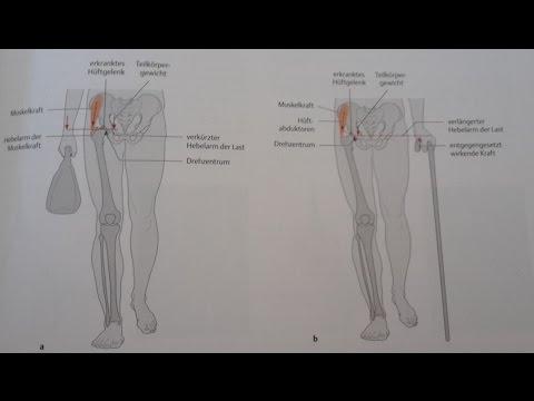 Bobrowski Behandlung von Gelenken