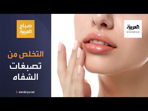 العرب اليوم - شاهد: كيف تتخلص من تصبغات الشفاه وأبرز الأمراض؟