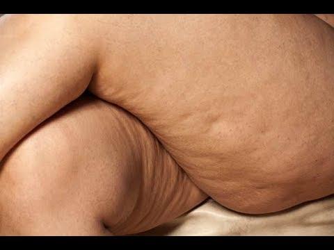 Como librarse del vientre en lo bajo del ejercicio