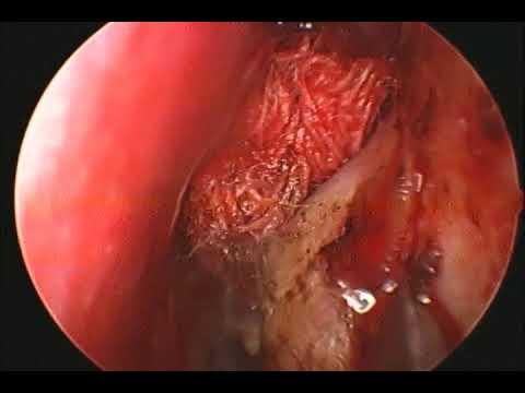 Cancerul de ovare se vede la ecograf