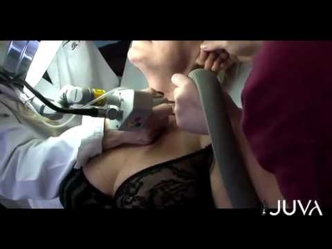 Esercizio della colonna vertebrale toracica condrosi