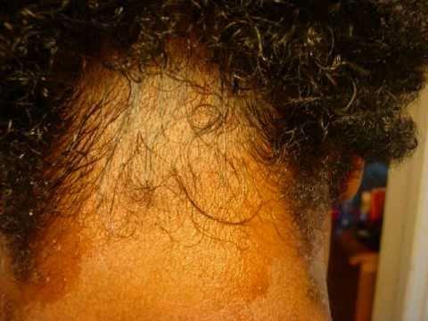Hair oil tumutulong sa buhok pagkawala