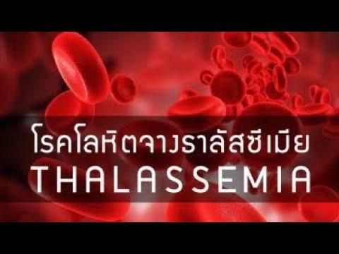 การวินิจฉัยแยกโรคของโรคสะเก็ดเงิน vulgaris