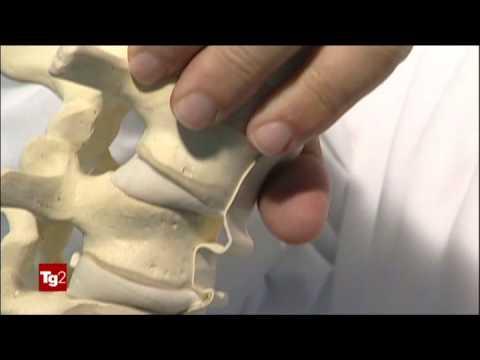 Osteochondrosis di reparto lombare di sintomi di spina dorsale