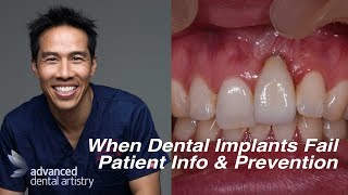 Dental Implant Failures - Patient Information and Prevention