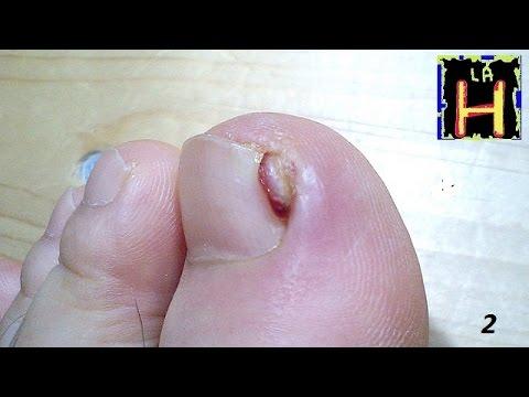 El hongo acuoso sobre los dedos de los pies