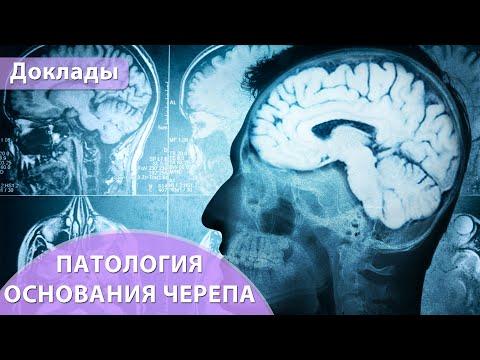 Патология основания черепа. Андрей Мангов