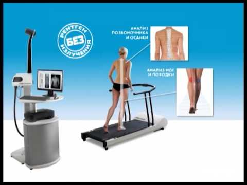 Комплекс упражнений лфк при нарушении осанки