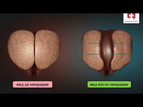 Киста предстательной железы удаление