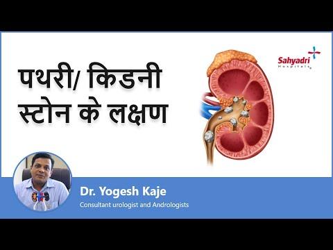 पथरी/ किडनी स्टोन के लक्षण   Signs And Symptoms Of Kidney Stone in Hindi  Dr. Yogesh Kaje   Sahyadri