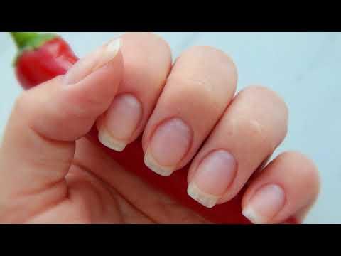 Wie die Tropfen eksoderil bei gribke die Nägel zu verwenden