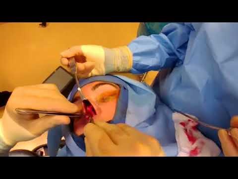 Chirurgia vascolare Yevpatoria
