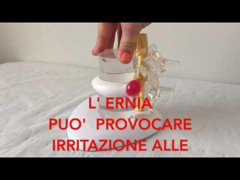 Come curare lernia intervertebrale di reparto cervicale