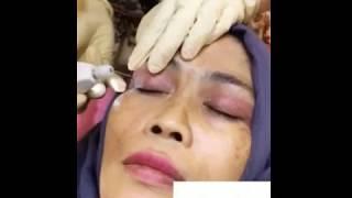 Plexr Soft Blepharoplasty lift drooping eyelids