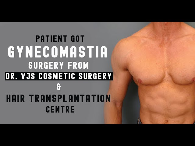 Another Successful Gynecomastia Surgery in Vizag By Dr.C.Vijay Kumar