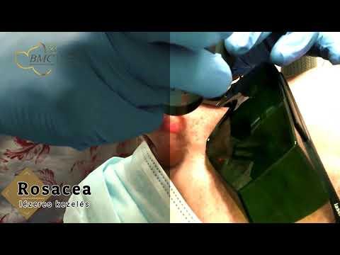 Myopia kezelés hatékonysága a lézeres korrekció