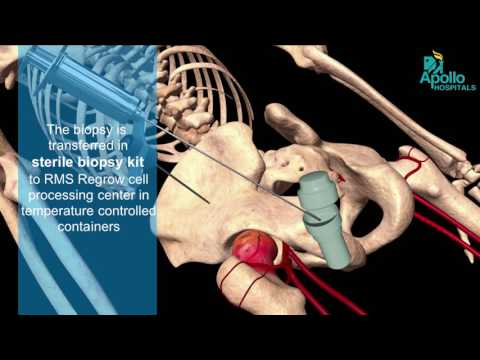 Hip Joint Pain – Here's why you may not need replacement