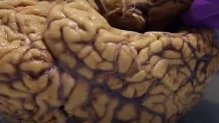 The human brain is shrinking according to scientists