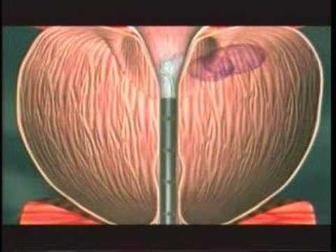 laser+verde+prostata+messina+youtube