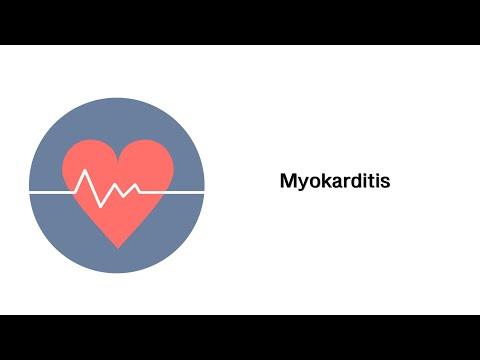 Aspirin Cardio und cardiomagnil Hypertonie