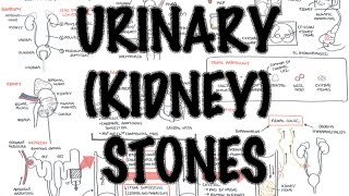 Urinary/Kidney Stones - Overview (signs and symptoms, risk factors, pathophysiology, treatment)