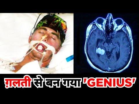 ये आदमी ने दिमाग पर चोट खायी और ऐसे ये बन गया GENIUS (Jason Padgett Brain Case Analysis)