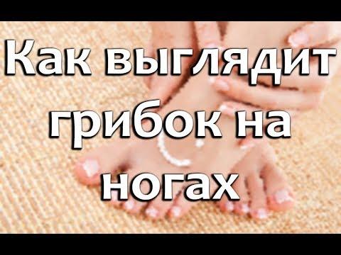 Wie den sich losreißenden Nagel auf dem Bein zu behandeln