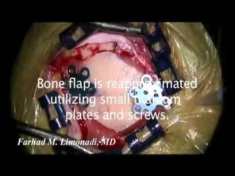 Schmerzen im Magen und unterhalb der Taille
