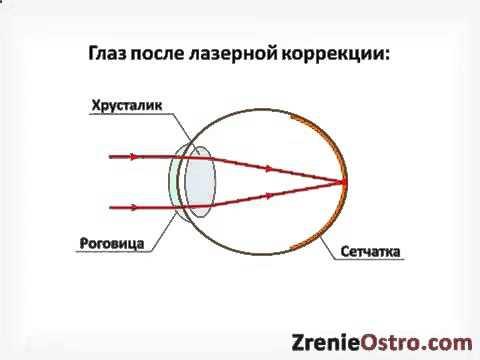 Лазерная коррекция зрения стоимость южно-сахалинск