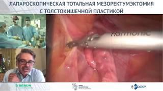 Лапароскопическая тотальная мезоректумэктомия с формированием толстокишечного резервуара