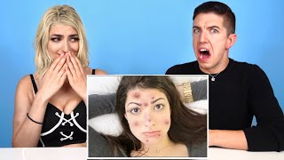 Hyram Reacts To My Weird Acne Life Hacks! by RCLBeauty101