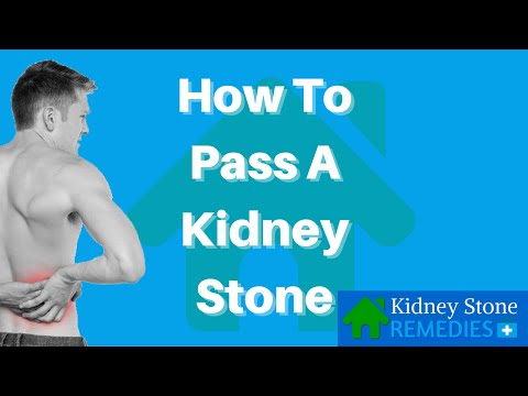 How To Pass A Kidney Stone - Kidney Stone Home Remedies