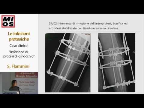Radiografie dellarticolazione della spalla in cui fare a St. Petersburg