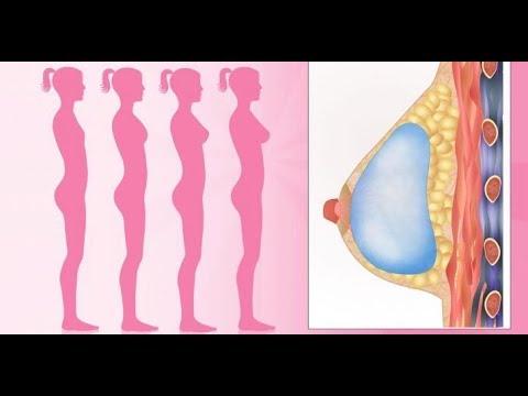 Otjimaniya pour laugmentation du volume de la poitrine