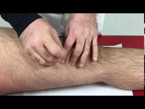 Eine Entzündung der Muskeln im Kniegelenk