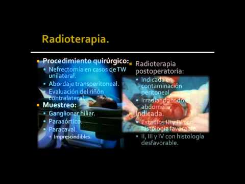 Gastric cancer uk statistics