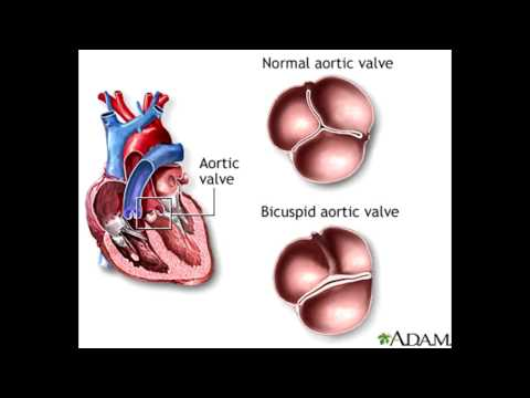 Skoki ciśnienia tętniczego krwi, które jest