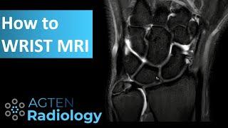 How to assess Wrist MRI