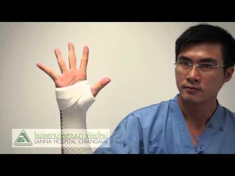 ความผิดปกติ valgus ของแขนขาลดลงคือ