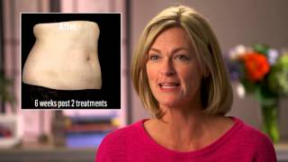 SculpSure Body Contouring – Melt 25% of Your Fat in 25 Minutes – No Surgery, No Downtime