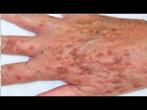 Tratamento de um fungo de pregos cebolas índias permanentes